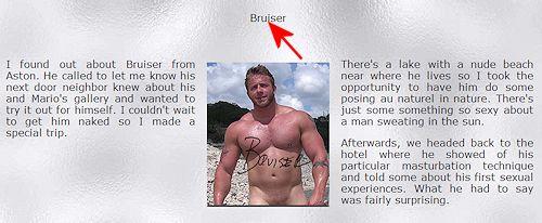 Aaron_bruise_theguyssite_001a